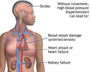 hypertension-result