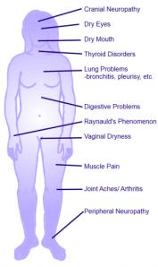 sjogrenssymptoms