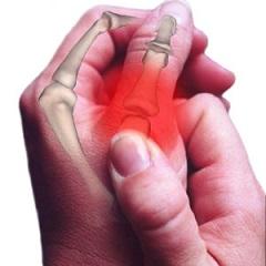 thumbsprain